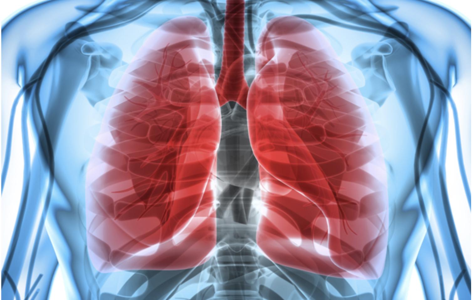 Tegen 2035 sterven 2,45 miljoen mensen per jaar aan longkanker